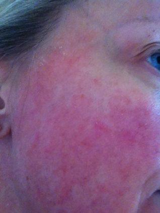steroid-dermatitis1